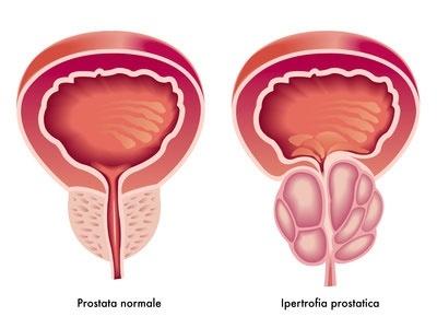 prostata ingossata, cause, rimedi, rimedi naturali, sintomi, forme, cure, cure naturali, alimentazione prostata ingrossata,