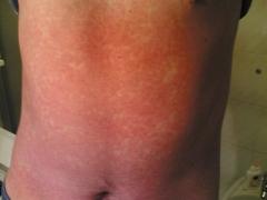 rosolia,rimedi cura rosolia,febbre,vaccino