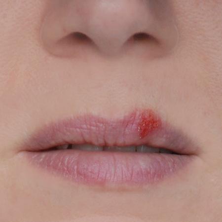 herpes,rimedi naturali,infezione