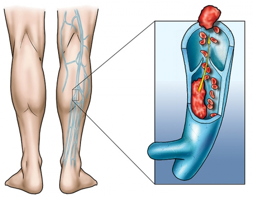 trombosi venosa profonda, cause della trombosi, vena otturata, come curare la trombosi,