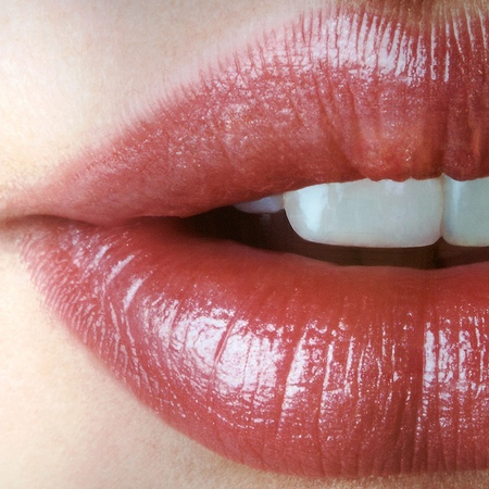 denti bianchi,rimedi,fai da te,benessere